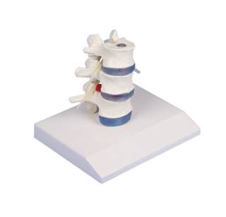 Lumbar vertebrae with prolapsed intervertebral discs