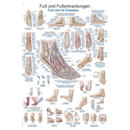 Big Chart foot and foot diseases 70 x 100 cm, plastic